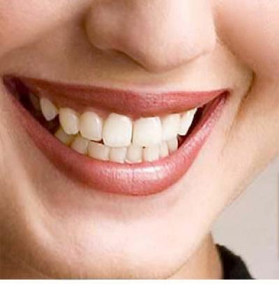 Если у человека зубы как клыки