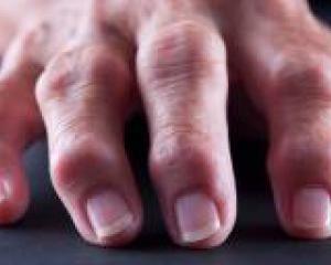пальцы скрюченные артритом